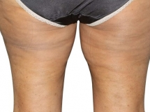 Cellulite - After