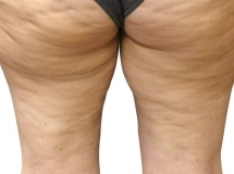 Cellulite - Before