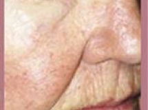 Rosacea - After