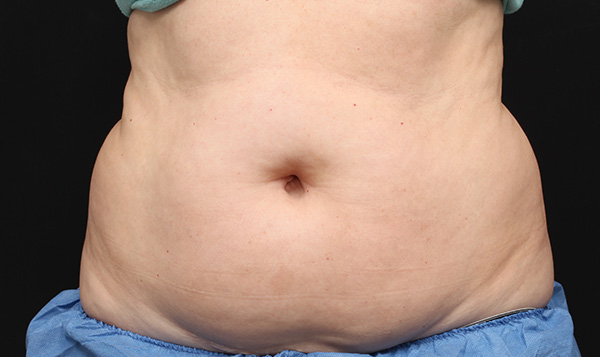 abdomen-before