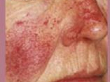Rosacea - Before